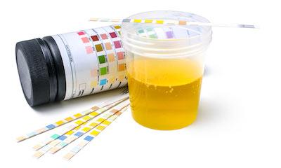 Urine Onderzoek - In de Leonardus - Centrum Huisartsen Den Bosch - 's-Hertogenbosch